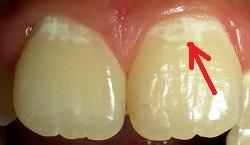 Кариес у ребенка болит зуб