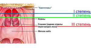 adenoidy-stepeni