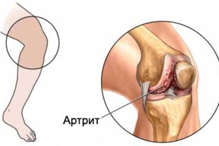 боль в колене артрит