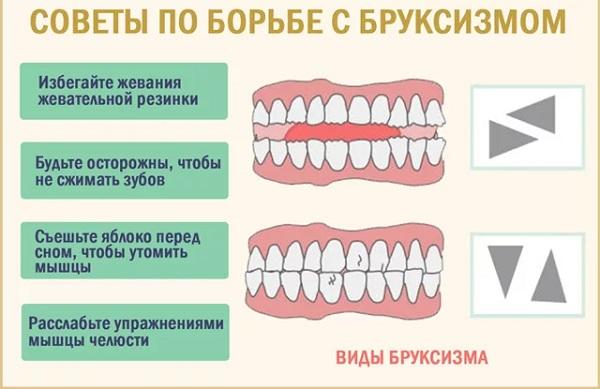 бруксизм скрежет зубов