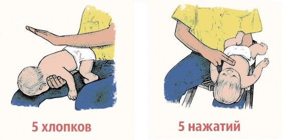 chto-delat-esli-rebenok-podavilsya-edoy
