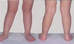 короткая нога у малыша