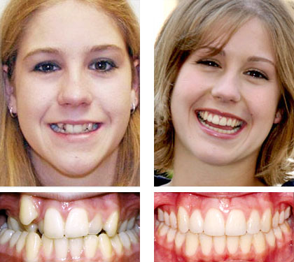 кривые зубки