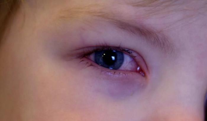круги под глазами дети