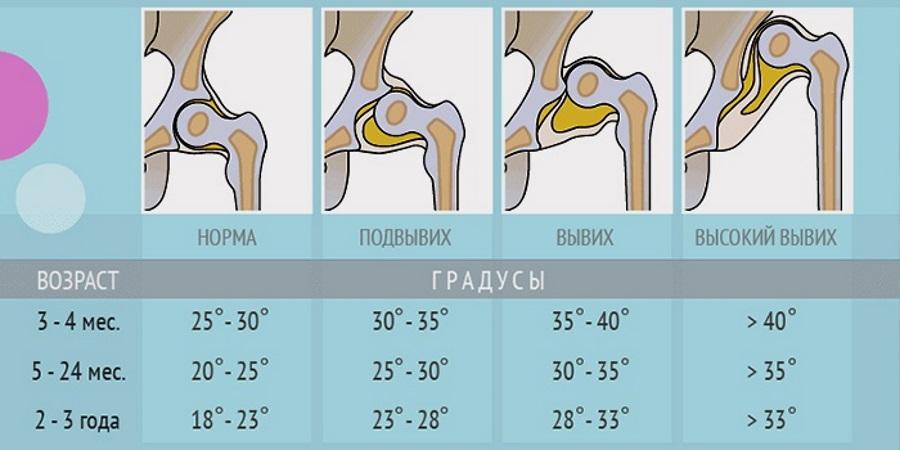 норма дисплазия тазобедренного сустава