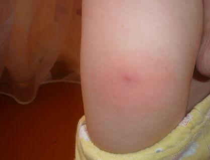 Акдс ребенок после прививки