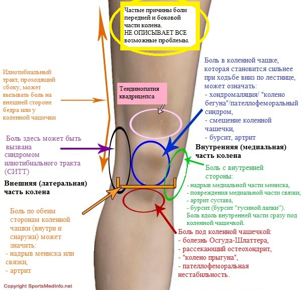 Когда болят колени с чем это связано