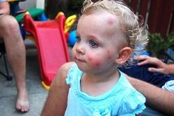 средства от комаров для детей и мошек