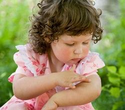 укус комара дети