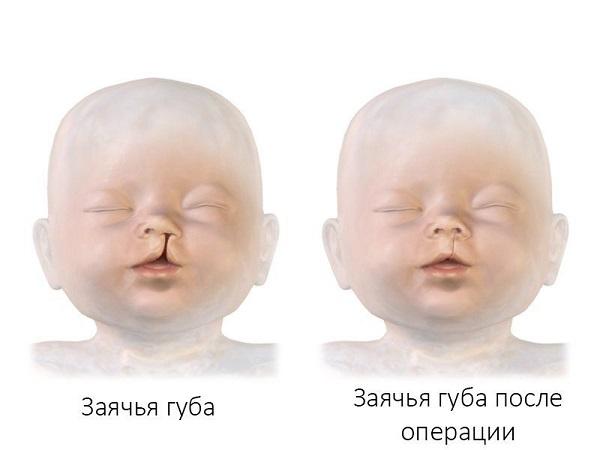 заячья губа операция