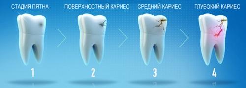 зуб болит у ребенка стадии кариеса